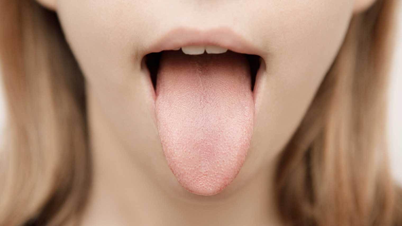 舌みがきで口臭予防!正しい舌苔の取り方7つのポイント | Lidea ...
